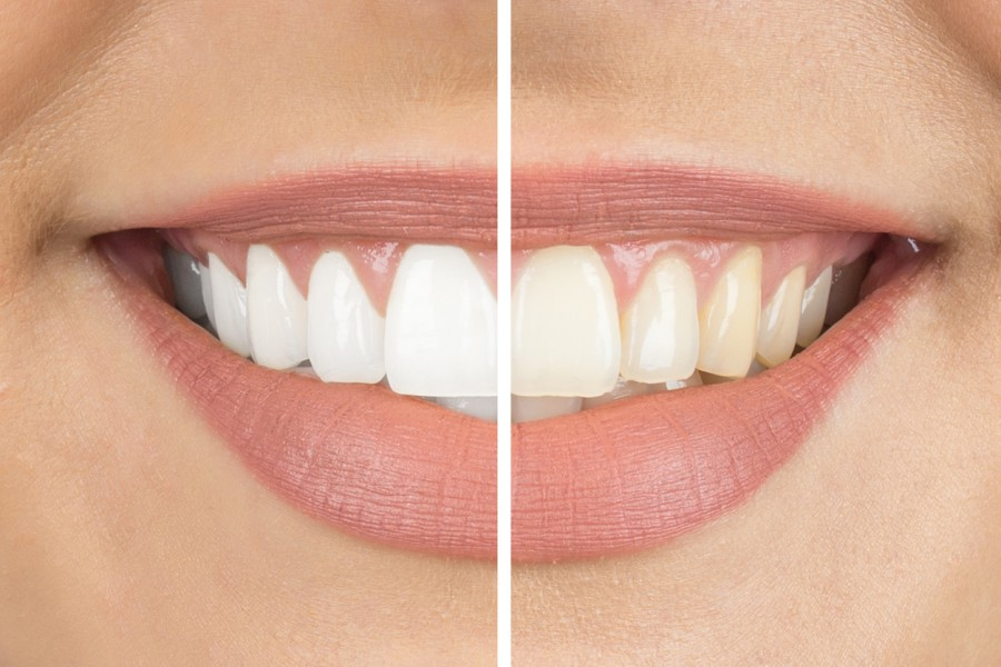 избелване на зъбита
