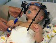 Чудо: Пришиха главата на дете, пострадало при катастрофа (ВИДЕО)
