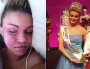 Невероятната история на Шели: От момиче със змийска кожа до кралица на красотата