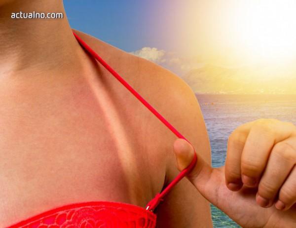 photo of 16 трика, които ще ти помогнат при слънчево изгаряне