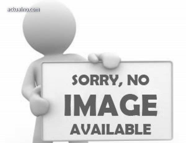 photo of ВИЖТЕ залятата с киселина жена (СНИМКА)
